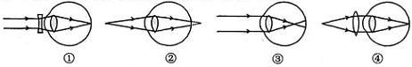 远视眼及其矫正_初中物理透镜及其应用测试题
